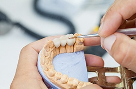 preparing a dental bridge