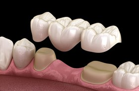 illustration of three-unit porcelain dental bridge against dark background