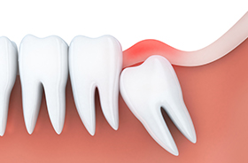 Graphic of wisdom tooth