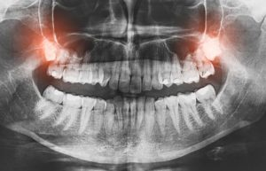 X-ray of impacted teeth, causing wisdom tooth pain